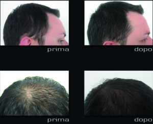 TRATTAMENTO TRICOLOGICO My Multi Injection i-hair